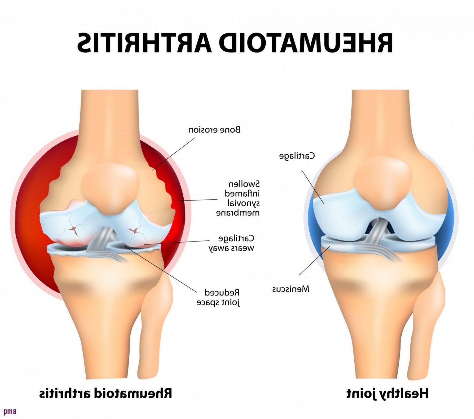 25 Top Layout Betreffend Knieschmerzen Beim Treppen Runtergehen von Knieschmerzen Beim Treppe Runter Bild