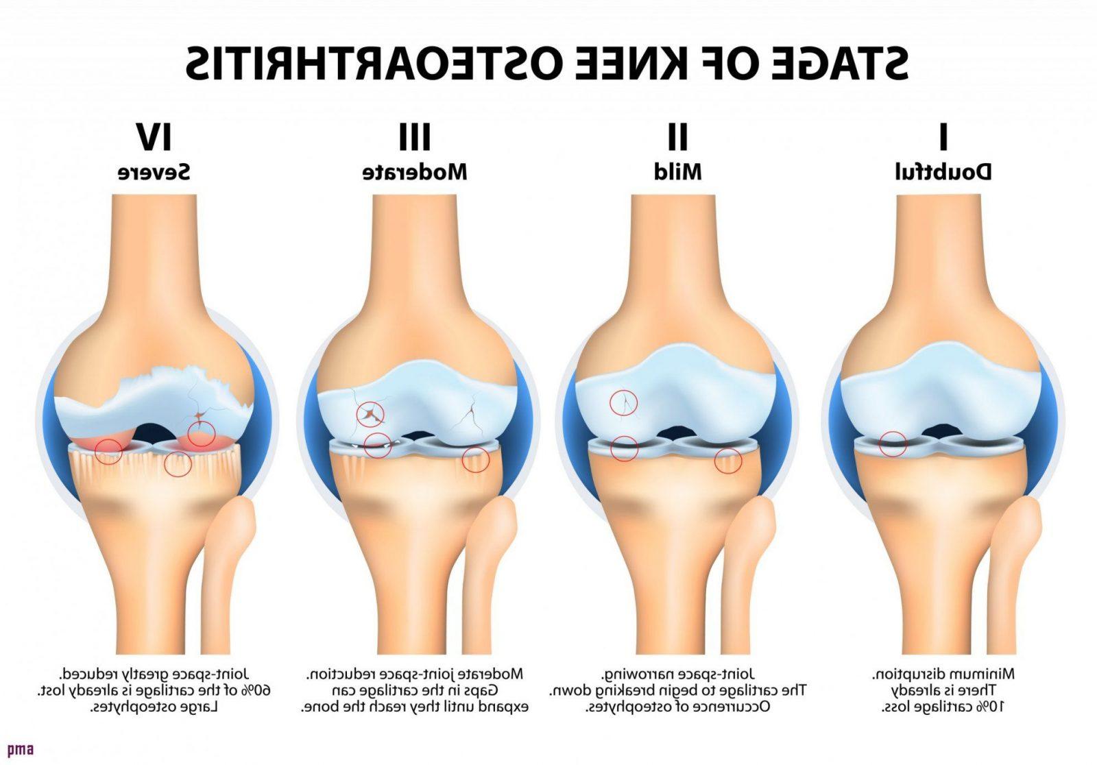 Knieschmerzen Beim Treppen Laufen 37 Frisch Muster Oben von Knieschmerzen Beim Treppen Runtergehen Photo