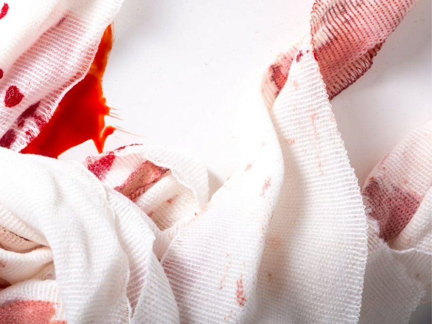 Blutflecken Aus Kleidung Entfernen Blutflecken Entfernen Diese von Alte Blutflecken Entfernen Matratze Bild