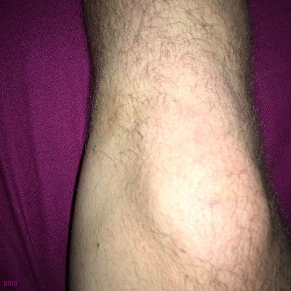 Knieschmerzen Beim Treppen Runtergehen 26 Neu Ideen Über von Knieschmerzen Beim Treppe Runter Gehen Bild
